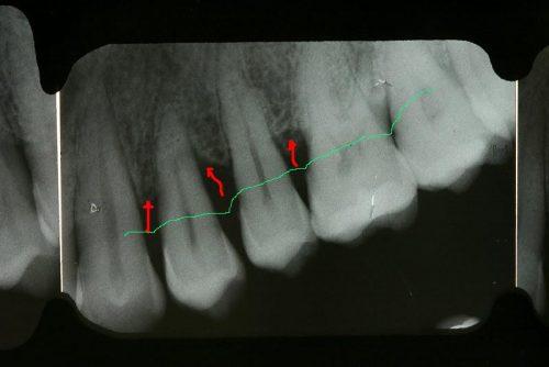 parodontite, malattia gengive, piorrea